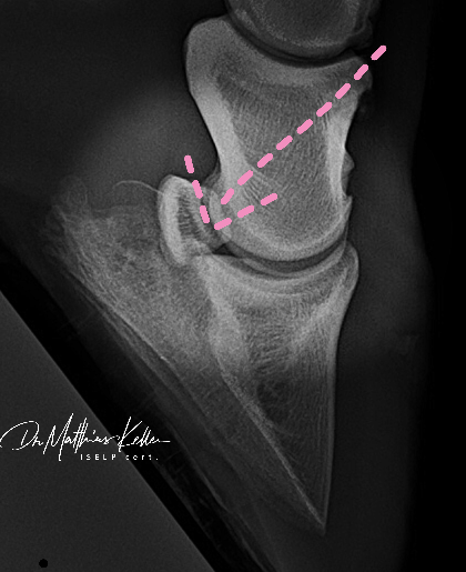 3E60D7CF F61A 4C32 8164 ACB53475E7DE - Pferdesportpraxis: ligamentous navicular pain
