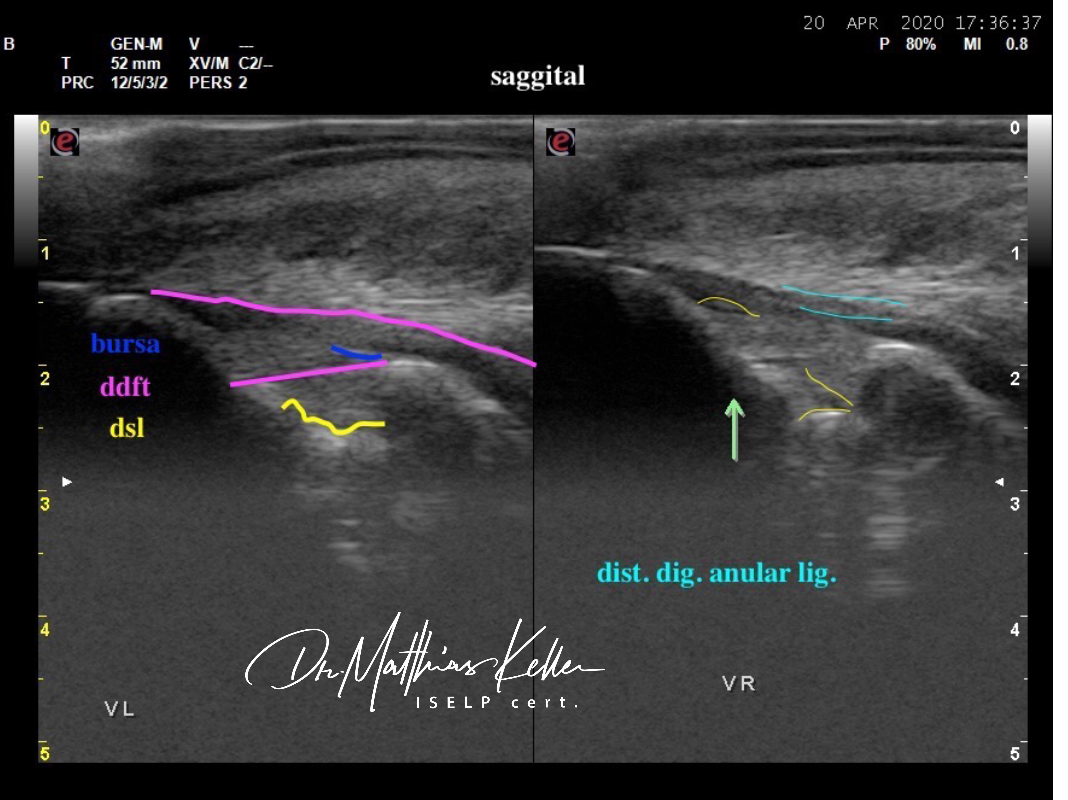 6B7735B2 995C 4DF2 808B 542AC0CF42EE - Pferdesportpraxis: ligamentous navicular pain