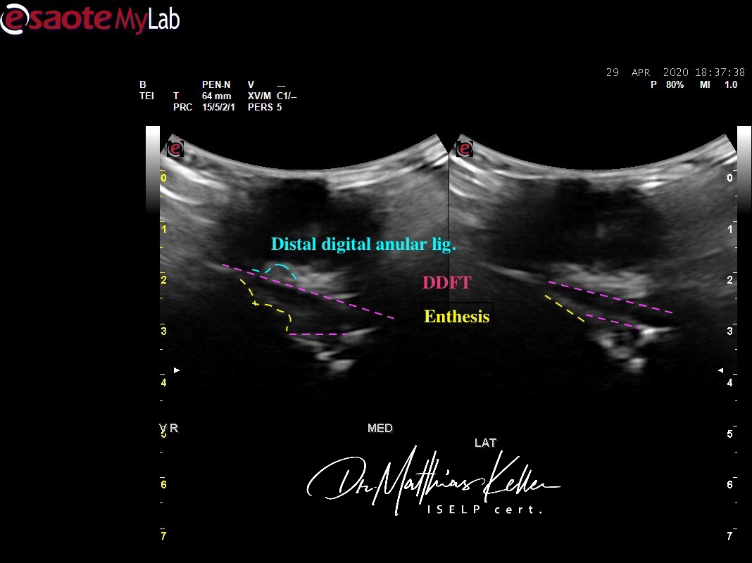 F877C41F 7886 40C7 A13C 803B1830B41C - Pferdesportpraxis: ligamentous navicular pain, lesions